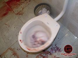 investiga199195o mulher aborta em vaso sanit225rio gilson de