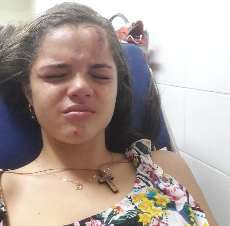 Adolescente atingida por bala de borracha