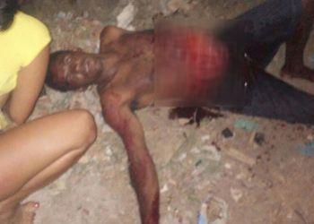 Tentativa de morte: No munic�pio de Frei Paulo (SE), homem � socorrido com as v�sceras expostas